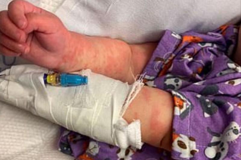 被懷疑是合併感染首例?美國半歲女嬰3月同患川崎症與新冠肺炎