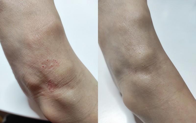【濕疹皮膚】皮膚痕癢兼紅疹?小心濕疹發作!教你一招治療方法