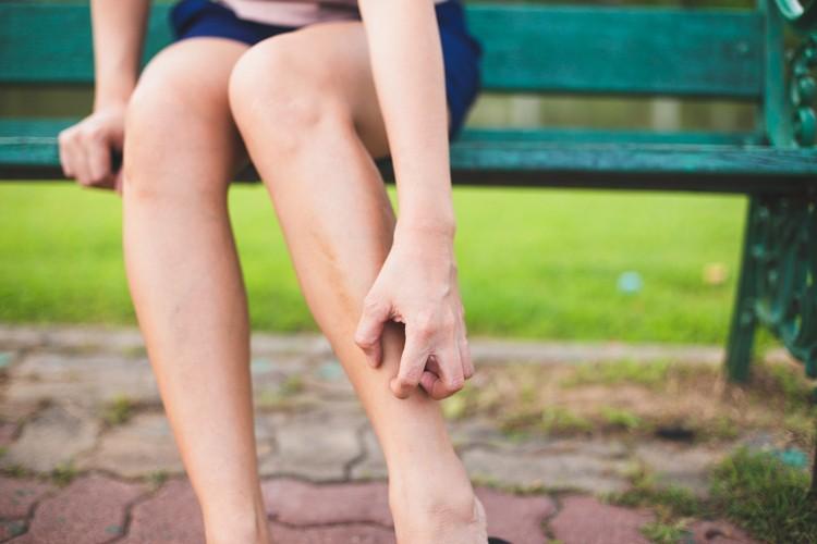 【撃退濕疹】濕疹10年不斷復發!用非類固醇藥膏1個月有效控制病情