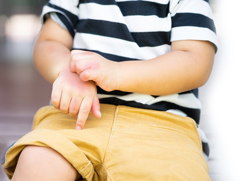 【對抗濕疹】濕疹都會遺傳?濕疹母子用非類固醇藥膏成功擊退濕疹!